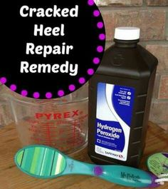 2 cups of hydrogen peroxide + 2 cups Hot water. Soak 30 minutes. Dry completely + Immediately use pumice stone to remove the dead skin 1-2 minutes each foot. Finish by applying lotion to your feet (O'Keefe's Healthy Feet). Cover with socks overnight to seal in the moisture.