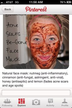 natural face mask -- help to fade a couple small acne scars