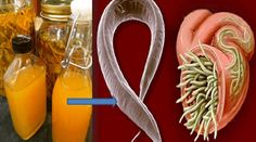 Kill Any Infection In Your Body! This Is The Strongest Natural Cure Ever! – GlobeUnified
