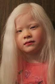 albino asian children - Google Search