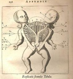 Anatomical drawing of a Siamese twin. Fortunio Liceti, De monstris, Amsterdam 1665