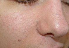 Hautprobleme Naturheilmittel Gegen Schwarze Mitesser Warzen Und
