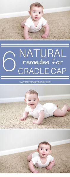 6 Natural Remedies For Cradle Cap