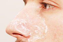 Remove Blackheads (Baking Soda and Water Method)