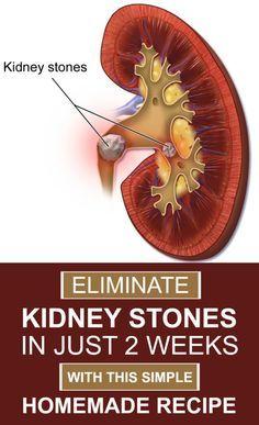 Eliminate Kidney Stones In Just Two Weeks