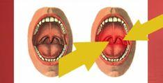 Причины симптомы фарингита