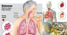 10 Remedios Caseros Que Puedes Hacer Usando Ajo Para La Neumonía