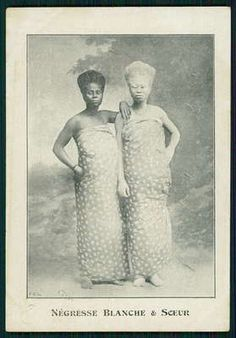 1910 french real picture postcard for African Albino and her sister.
