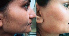 retirer poils naturellement visage avant après