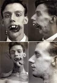 This is a soldier of WWI, he was badly injured and had plastic surgery,  reconstruction of his jaw.