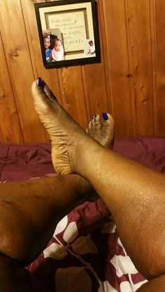 Black feet 098655