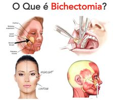 The Bichectomy or cheeks surgery is the operation used to improve or enhance facial features because it creates the illusion of having a more slender and elongated face thereby improves the aesthetic appearance and structure of the face. Botox Facial, Cheek Implants, Dental World, Facial Aesthetics, Dental Humor, Facial Muscles, Contouring And Highlighting, Plastic Surgery, Beauty Skin