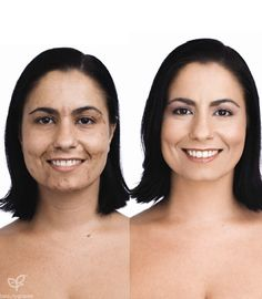 Amazing Coverage for Hyper-pigmentation.