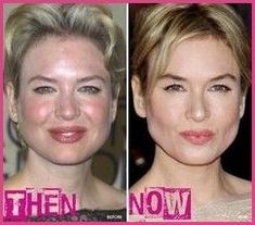 Renee Zellweger has taken a lot of criticism for her plastic surgery choices. Before and after after photos show the transformation from her natural face, to a Botox face, and back to natural. Plastic Surgery Photos, Celebrity Plastic Surgery, Renee Zellweger, Celebrities Before And After, Cosmetic Dentistry, No Photoshop, Celebrity Makeup, Beauty Makeup, Actresses
