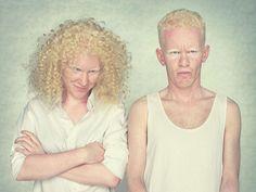 Gustavo Lacerda - Albinos.    http://www.gustavolacerda.com.br/