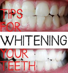 kandeej.com: How To Get Glowing White Teeth