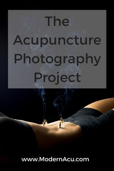 Acupuncture may sale ideas
