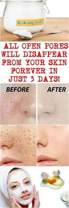Image result for Only Three Days and All Open Pores Will Disappear From Your Skin Forever