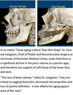 "Research suggests that it takes more than tightening loose skin to restore a youthful look. A study by physicians at the University of Rochester Medical Center indicates that significant changes in facial bones -- particularly the jaw bone -- occur as people age and contribute to an aging appearance.  ""The jaw is the foundation of the lower face, and changes to it affect facial aesthetics,"" said Howard N. Langstein, M.D., professor and chief of Plastic and Reconstructive Surgery at…"