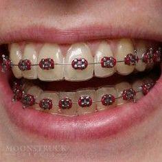 Anwen - Fake Braces Teeth - Moonstruck Effects Fake Braces, Dental Braces, Teeth Braces, Braces Bands, Braces Tips, Braces Transformation, Cute Braces Colors, Getting Braces, Gadgets