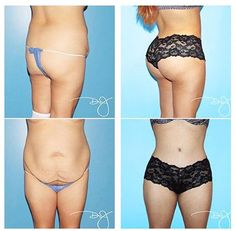 72d556824a This is an amazing transformation of tummy tuck and butt augmentation Made  possible by  drjplasticsurgery · Body Lift SurgeryTummy ...