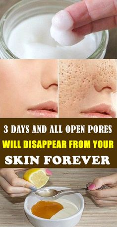 3 Days Open Pores Treatment and it Will Disappear From Your Skin Permanently! Open Pores Treatment The pores are small openings in the skin that allow you to breathe. They are almost impossible to see. Natural Beauty Tips, Natural Skin Care, Natural Baby, Diy Skin Care, Skin Care Tips, Piel Natural, Skin Care Remedies, Oily Skin Remedy, Natural Remedies