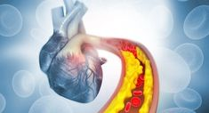People see ketogenic diet as a new treatment method for heart disease. Learn how keto diet helps reduced the risk of heart disease and other cardiovascular diseases. High Cholesterol Levels, Lower Your Cholesterol, Cholesterol Lowering Foods, Bad Circulation, Calf Pain, Clogged Arteries, Heart Anatomy, Low Blood Pressure, Family Doctors