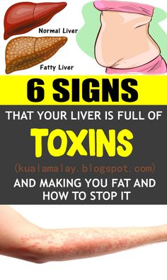 6 Signs That Your Liver Is Full Of Toxins And Making You Fat (And How To Stop It) health The liver is the biggest strong organ in t. Diet And Nutrition, Health Diet, Health And Wellness, Health Fitness, Health Exercise, Health Goals, Fitness Diet, Mental Health, Natural Health Remedies