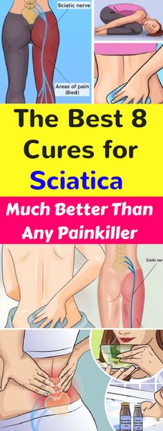 The Best 8 Cures for Sciatica – Much Better Than Any Painkiller - seeking habit