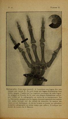 From Marie Curie's La Radiologie et la Guerre, published in Paris in 1921.