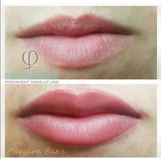 Colour. Extended top lip. Perfect.
