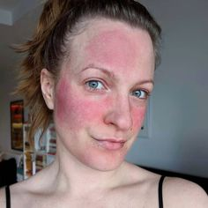 Have Chronic Rosacea – This Is The Only Skincare Routine That Helps .I Have Chronic Rosacea – This Is The Only Skincare Routine That Helps . All About Rosacea Rosacea Causes, Acne Rosacea, Rosacea Remedies, Health Remedies, Skin Care Routine 30s, Skincare Routine, Skincare Dupes, Haut Routine, Beauty Skin