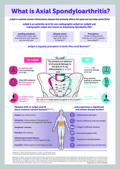 Chronic Inflammatory Disease, Ankylosing Spondylitis, Psoriatic Arthritis, Back Pain, Feel Good, Spa, Feelings, Health, Salud