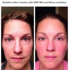 THREE WEEKS using the REVERSE Power Pack! Holy cow. It's a game changer. It turns back time. Brighter, fresher skin. Reverse your sun damage, age spots, freckles, melasma and dull skin. No uneven skin tone here!