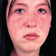 Lupus Rash: Tips To Keep Lupus Rash Under Control