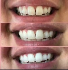 Whitening, Products