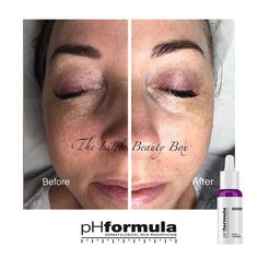 Excellent chronic redness skin resurfacing results achieved by our pHformula skin specialists in the UK. Thank you for sharing @littlebeautyboxcheshire  #pHformula #skinresurfacing #artofskinresurfacing #pHformulaUK #results #thankyou