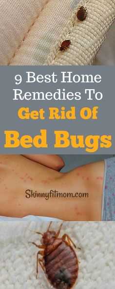 Secret Health Remedies 9 Best Home Remedies To Get Rid Of Bed Bugs Permanently- Bid farewell to bed bugs with these simple methods. Home Remedies For Colds For Babies, Cold Home Remedies, Natural Health Remedies, Herbal Remedies, Bed Bug Remedies, Fitness Tips, Health Fitness, Rid Of Bed Bugs, Water Retention Remedies