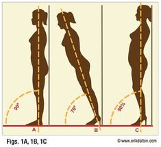 Pain & damage caused by high heels