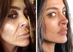 Mini Face Lift is a facelift procedure that minimizes incisions, scarring, and recovery under local anesthesia with no general anesthesia needed. Cheek Fillers, Dermal Fillers, Relleno Facial, Mini Face Lift, Facelift Before And After, Facial Aesthetics, Facial Rejuvenation, Jaw Line, Plastic Surgery
