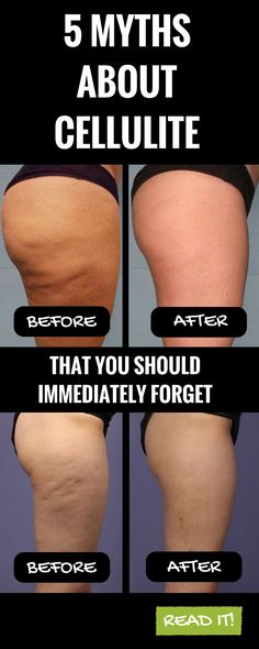 5 myths about cellulite that you should immediately forget. READ IT !