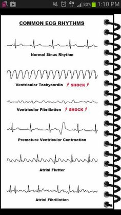 ECG's. abnormal and normal heart rate. #nursing