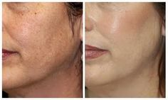 Microdermabrasion at home to brighten skin, and slowly reduce the appearance of fine lines, scarring and blemishes.  I WILL do this tonight and comment any results tomorrow!