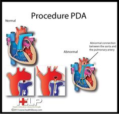 Procedure PDA By the time they knew what my problem was, it was too late. The Pulmonary Arterial Pressure was too high. It acts as a Back flow release valve. I also have hypoplastia left PA and PV.