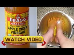 This Happens If You Dip Your Feet In Vinegar One Night A Week!!