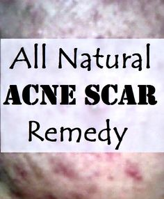 DIY All Natural Acne Scar Remedy