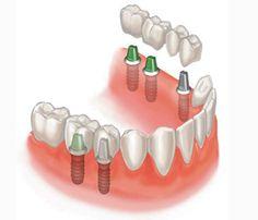 Ортопедическая стоматология, протезирование зубов, восстановление зубов, имплантанты зубов