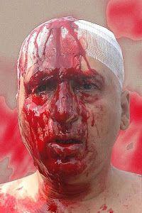 The Beggar Poet Bleeds ..