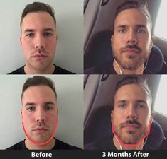Slim & Tone your facial skin, Grow your Jawline and Reduce your Double Chin. Revolutionary fitness and beauty product! Jawline Men, Good Jawline, Fat Face Exercises, Facial Exercises, How To Get Jawline, Big Biceps Workout, Guys Grooming, Face Transformation, Hairstyles For Fat Faces