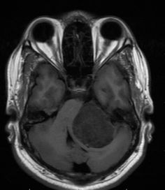 Acoustic schwannoma: most common cerebellopontine angle tumour.The most common presenting symptoms include; sensorineural hearing loss, tinnitus and vertigo. Contrast enhaced MRI is the investigation of choice for such lesions.